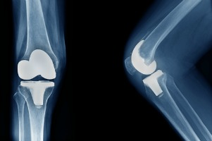 hip replacement and knee replacement